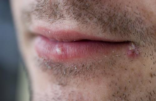 Лихорадка на губе народные средства лечения