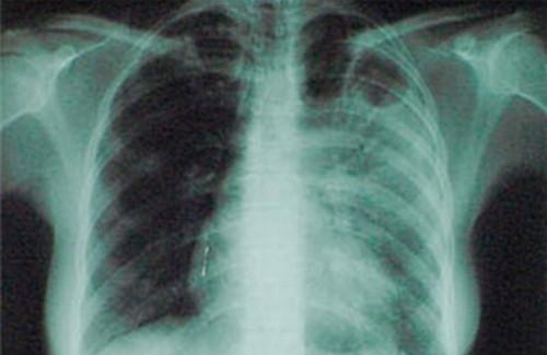 как должен питаться рентгенолог сердится, Россия сосредотачивается