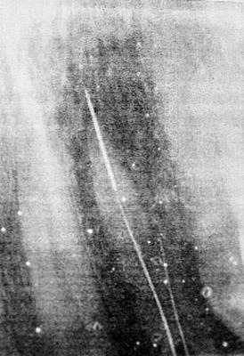 Рентген показал: в одном из зубов находилась часть сломанной иглы