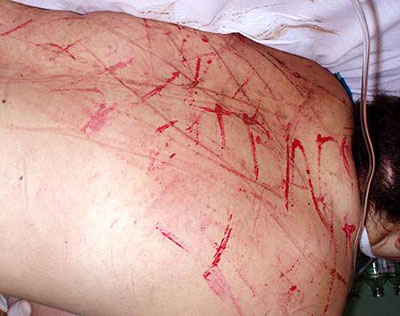 Мучительницы оставили кровавую роспись на спине подруги.