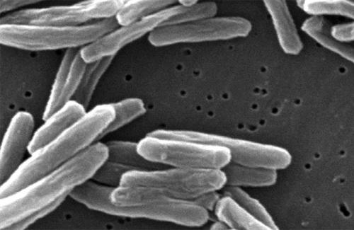 Туберкульоз обходиться дорого хворим