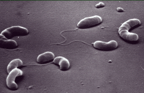 Холерні вібріони знаходили в річці біля міста Глобино