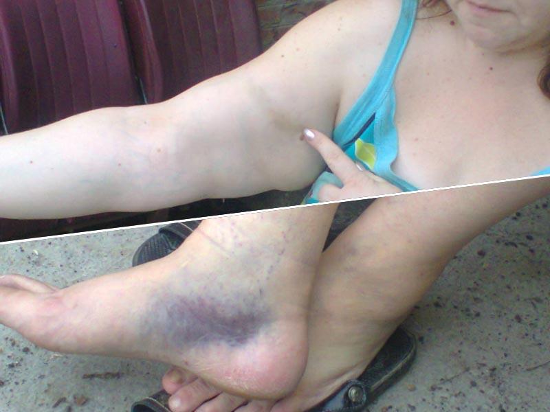 Жінка Сергія Шанди підвернула ногу